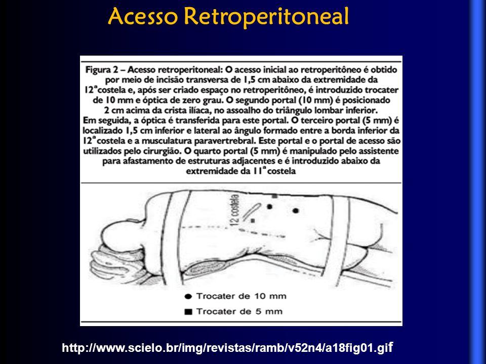 http://www.scielo.br/img/revistas/ramb/v52n4/a18fig01.gi f Acesso Retroperitoneal