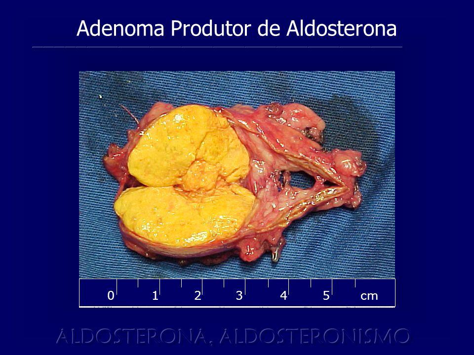 45 cm 2 0 3 1 Adenoma Produtor de Aldosterona