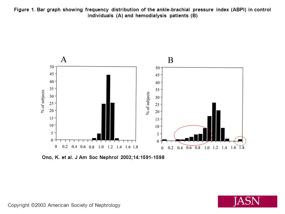 Copyright ©2003 American Society of Nephrology Ono, K. et al. J Am Soc Nephrol 2003;14:1591-1598 Figure 1. Bar graph showing frequency distribution of