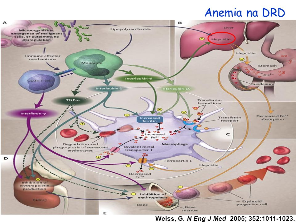 Anemia na DRD Weiss, G. N Eng J Med 2005; 352:1011-1023.