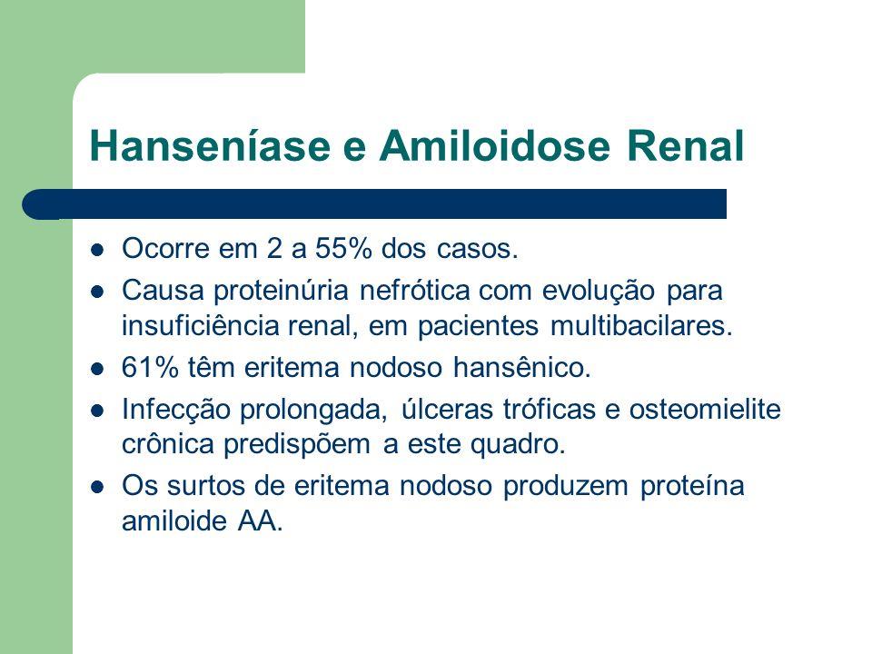 Hanseníase e Amiloidose Renal Ocorre em 2 a 55% dos casos. Causa proteinúria nefrótica com evolução para insuficiência renal, em pacientes multibacila