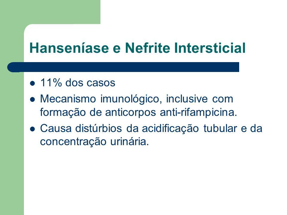 Hanseníase e Nefrite Intersticial 11% dos casos Mecanismo imunológico, inclusive com formação de anticorpos anti-rifampicina. Causa distúrbios da acid