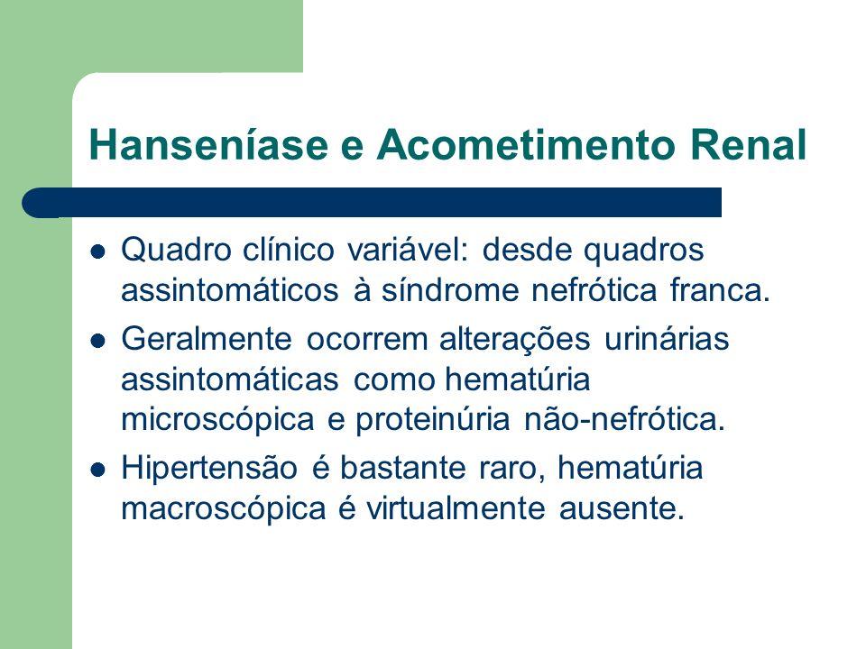 Hanseníase e Acometimento Renal Quadro clínico variável: desde quadros assintomáticos à síndrome nefrótica franca. Geralmente ocorrem alterações uriná