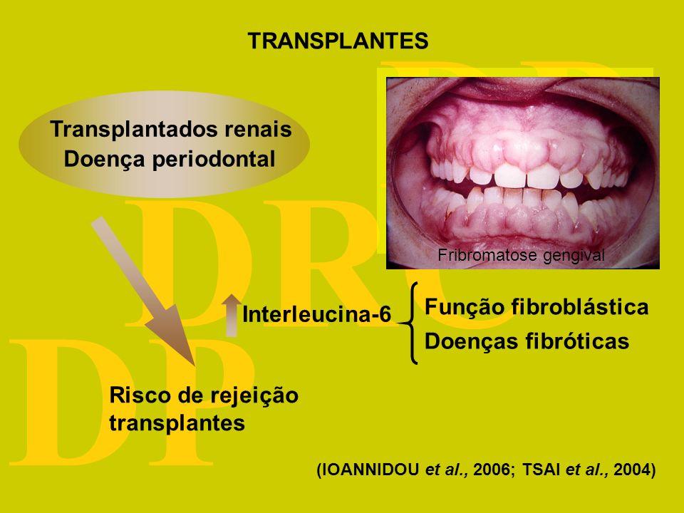 DRC DP Doença periodontal Interleucina-6 Função fibroblástica Doenças fibróticas Risco de rejeição transplantes (IOANNIDOU et al., 2006; TSAI et al., 2004) Transplantados renais TRANSPLANTES Fribromatose gengival
