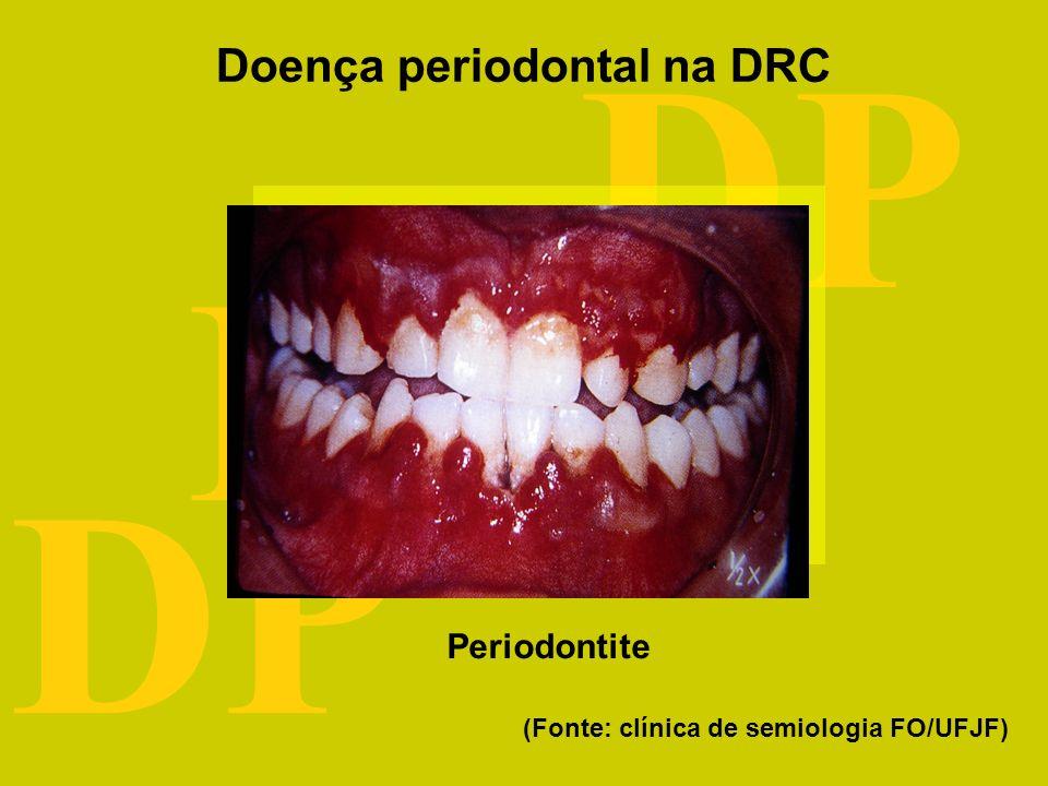 DRC DP Fatores de risco comuns Doença periodontal idade diabetes renda educação Doença renal crônica tabagismo