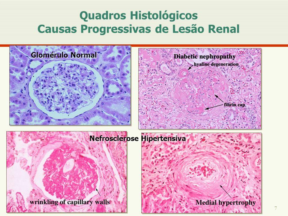 7 Glomérulo Normal Nefrosclerose Hipertensiva Quadros Histológicos Causas Progressivas de Lesão Renal