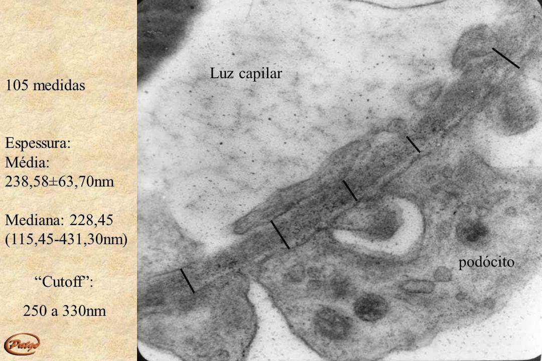 MB Luz capilar Espaço urinário endotélio Microscopia eletrônica, 12.000X