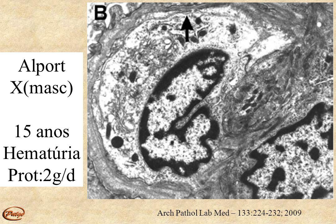 Alport X(masc) 9 anos hematúria Prot:0,5g/d Arch Pathol Lab Med – 133:224-232; 2009