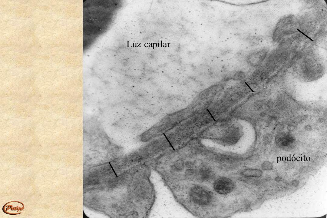 Alport X(masc) 42 anos Hematúria Prot: 8,3g/d Creat:2,7mg/dl Arch Pathol Lab Med – 133:224-232; 2009