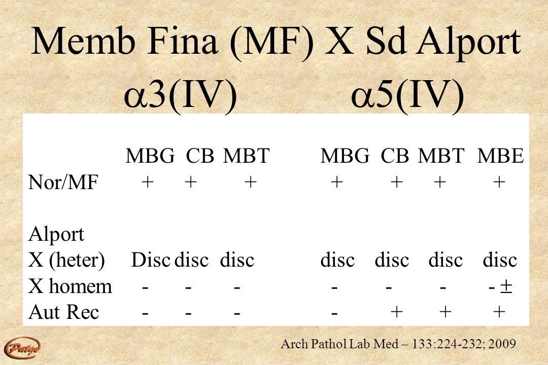 Alport – X Rim masculino 1 3 - negativo 5 - negativo Rim feminino 2 - vermelho 5 2; 5 5 Pele 5-neg 2 feminino masculino 5