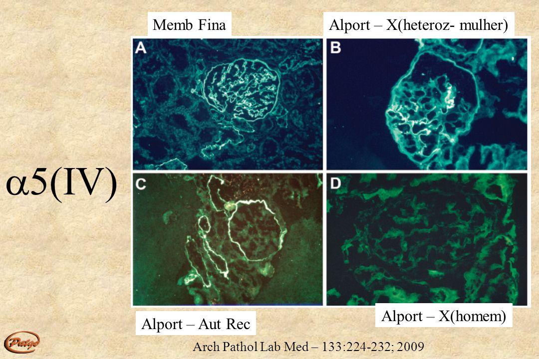 Arch Pathol Lab Med – 133:224-232; 2009 MBG CBMBT MBG CBMBT MBE Nor/MF + + + + + + + Alport X (heter) Discdisc discdisc disc disc disc X homem - - - - - - - Aut Rec - - - - + + + 3(IV) 5(IV) Memb Fina (MF) X Sd Alport