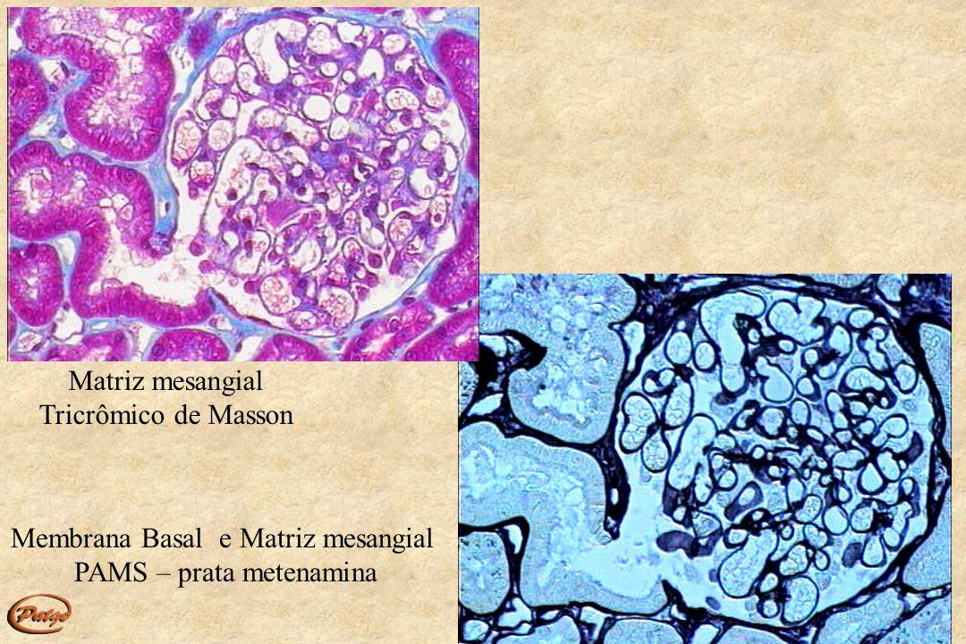 Compartimentos Glomerular Vascular Tubular Intersticial