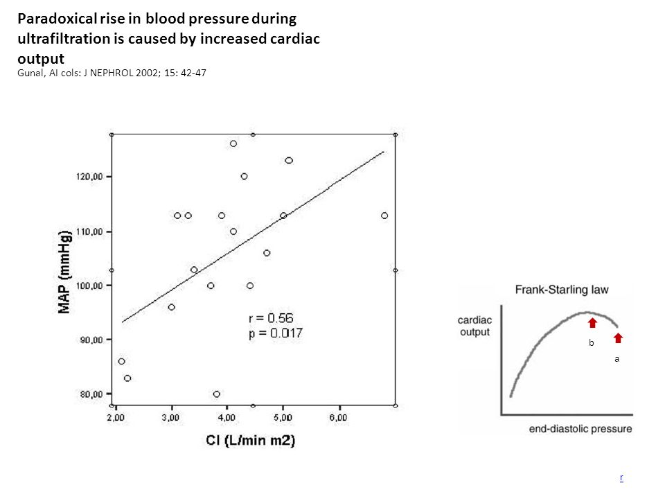 Paradoxical rise in blood pressure during ultrafiltration is caused by increased cardiac output Gunal, AI cols: J NEPHROL 2002; 15: 42-47 r a b