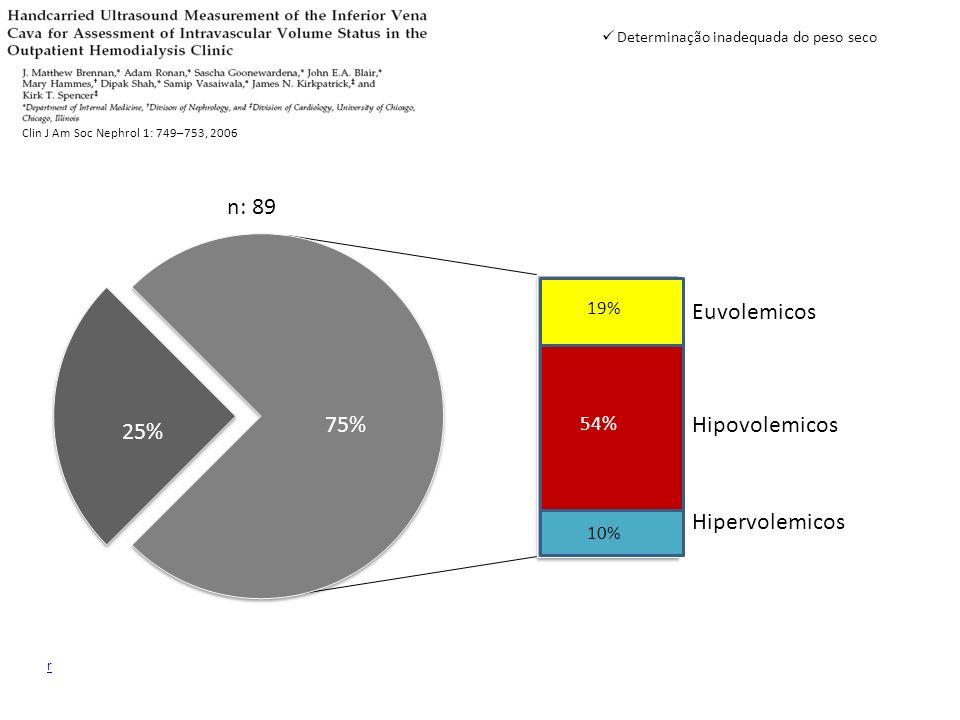 r 75% 25% Euvolemicos Hipervolemicos Hipovolemicos 10% 19% 54% Clin J Am Soc Nephrol 1: 749–753, 2006 n: 89 Determinação inadequada do peso seco