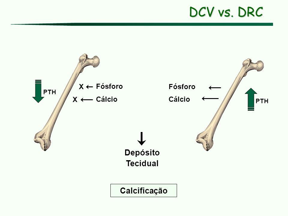Cálcio Fósforo PTH Calcificação Depósito Tecidual Cálcio Fósforo X X DCV vs. DRC