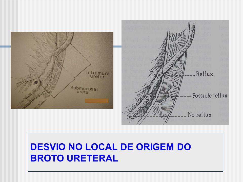 DESVIO NO LOCAL DE ORIGEM DO BROTO URETERAL