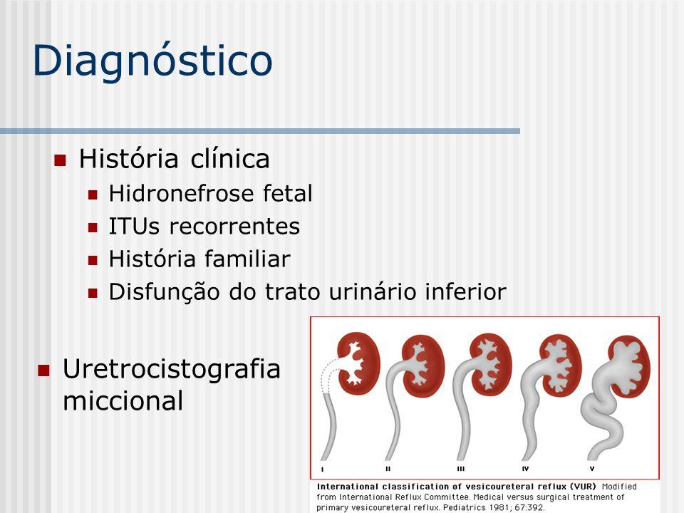 História clínica Hidronefrose fetal ITUs recorrentes História familiar Disfunção do trato urinário inferior Diagnóstico Uretrocistografia miccional