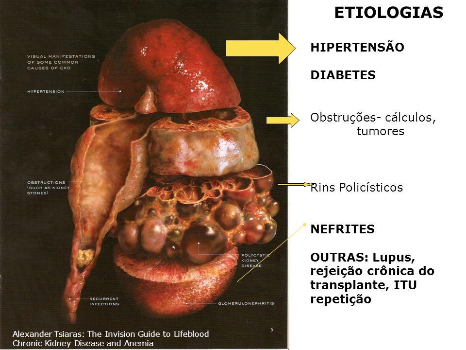 ETIOLOGIAS HIPERTENSÃO DIABETES Obstruções- cálculos, tumores Rins Policísticos NEFRITES OUTRAS: Lupus, rejeição crônica do transplante, ITU repetição