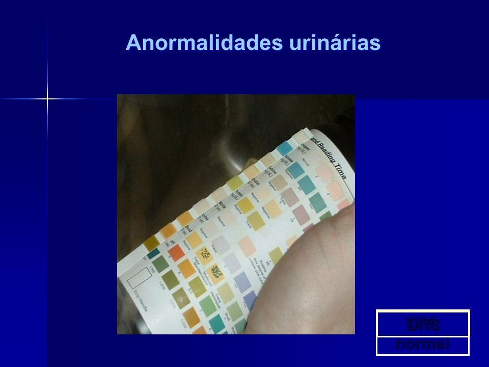 Anormalidades urinárias TFG normal DRC
