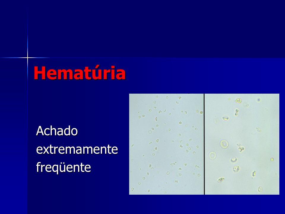 Hematúria Achadoextremamentefreqüente