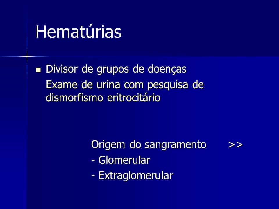 Hematúrias Divisor de grupos de doenças Divisor de grupos de doenças Exame de urina com pesquisa de dismorfismo eritrocitário Origem do sangramento >>