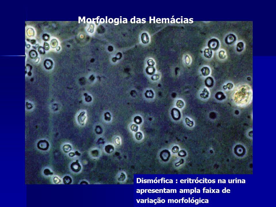 Morfologia das Hemácias Dismórfica : eritrócitos na urina apresentam ampla faixa de variação morfológica