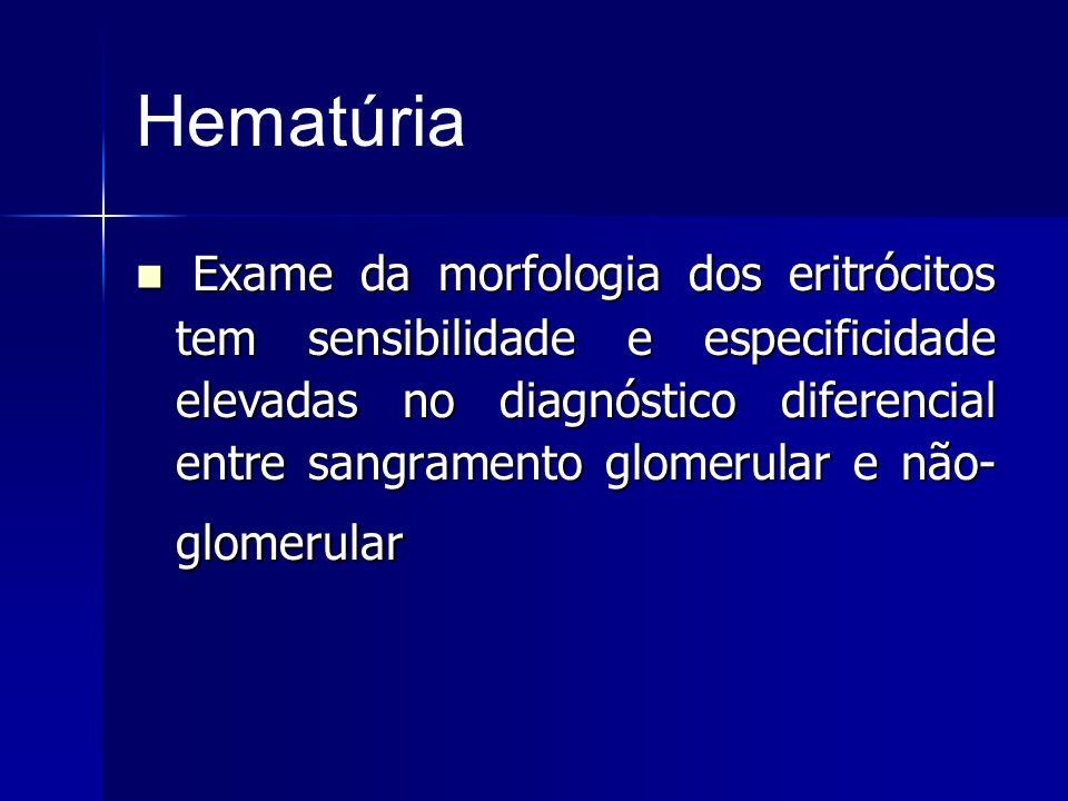 Hematúria Exame da morfologia dos eritrócitos tem sensibilidade e especificidade elevadas no diagnóstico diferencial entre sangramento glomerular e nã