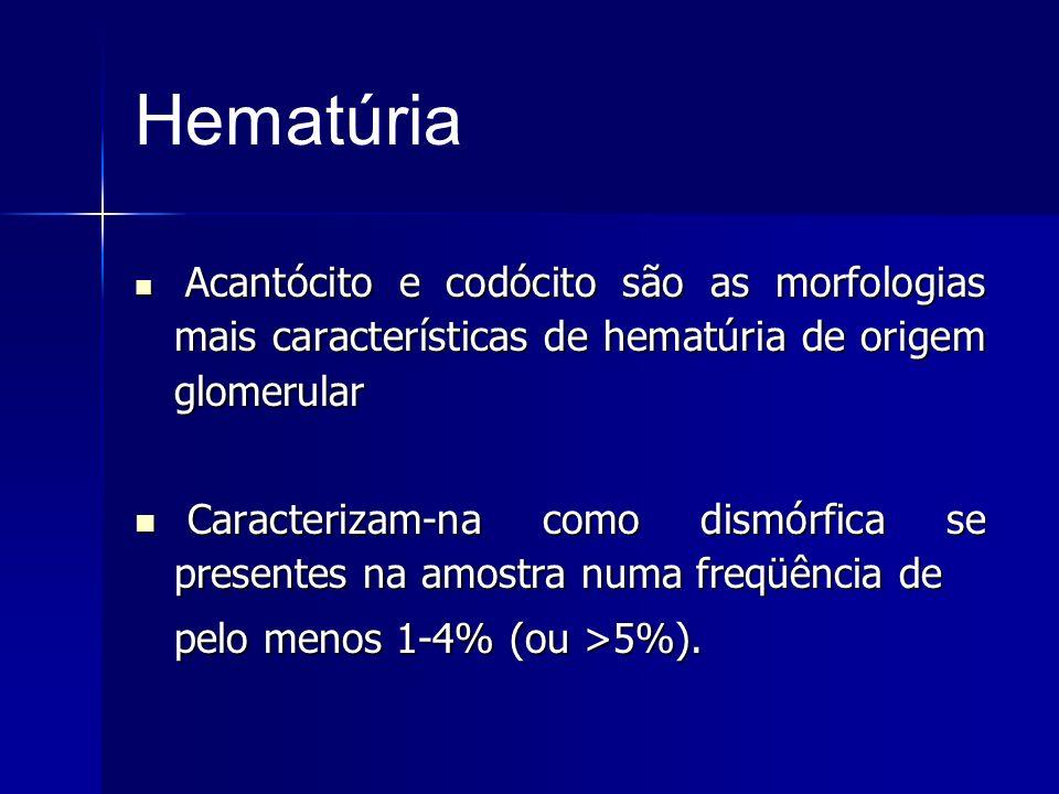 Hematúria Acantócito e codócito são as morfologias mais características de hematúria de origem glomerular Acantócito e codócito são as morfologias mai