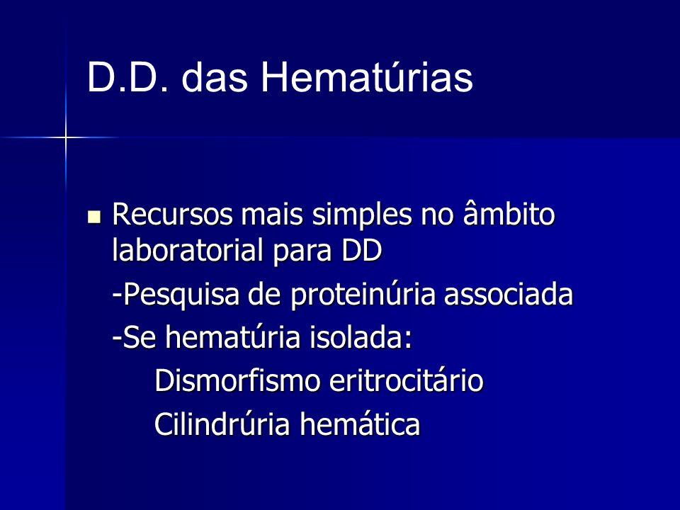D.D. das Hematúrias Recursos mais simples no âmbito laboratorial para DD Recursos mais simples no âmbito laboratorial para DD -Pesquisa de proteinúria