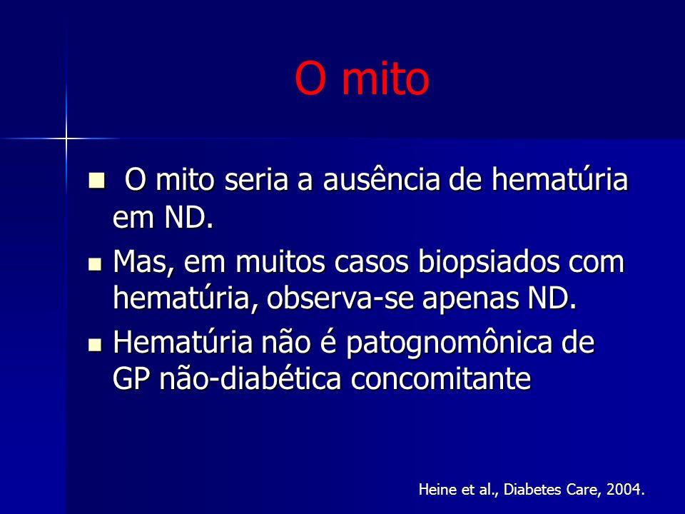 O mito O mito seria a ausência de hematúria em ND. O mito seria a ausência de hematúria em ND. Mas, em muitos casos biopsiados com hematúria, observa-