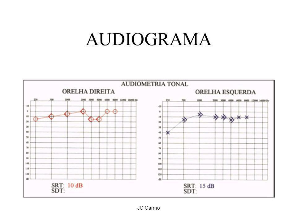 JC Carmo AUDIOGRAMA