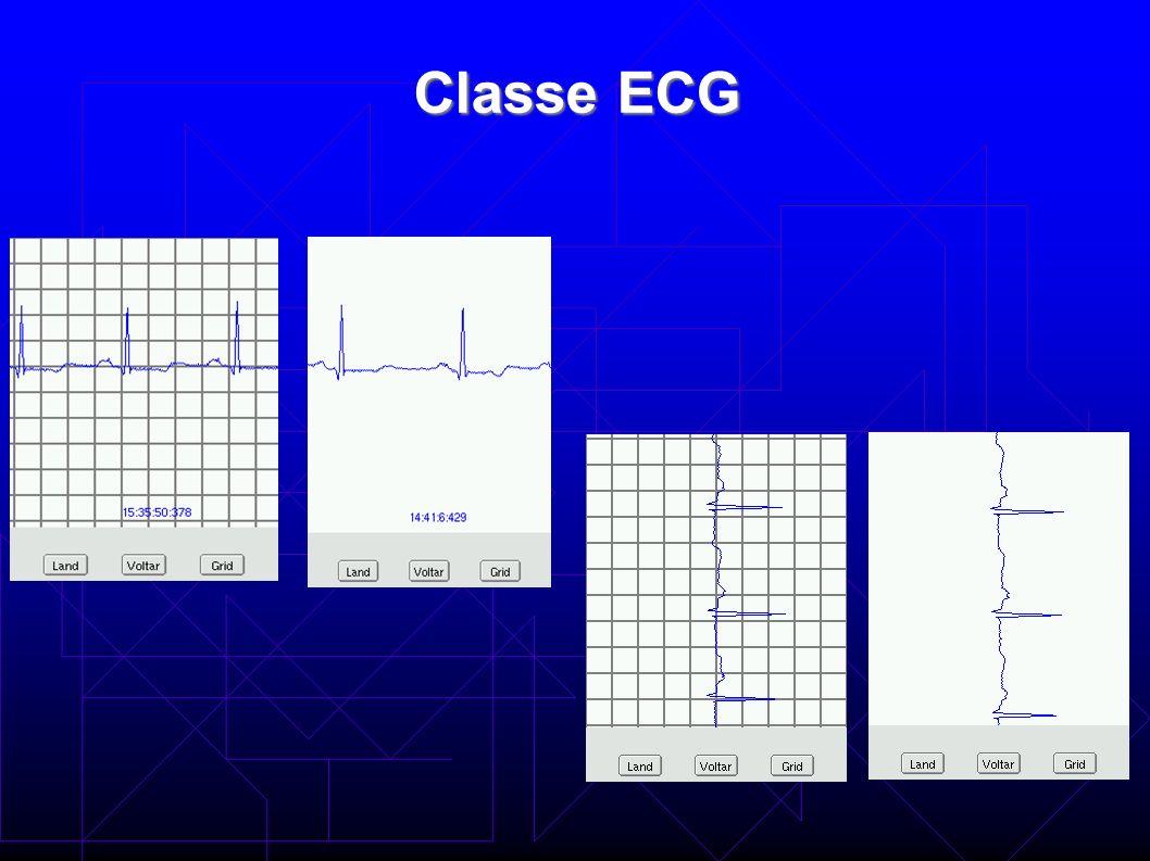 Classe EMG Mostra 2 segundos de um sinal de EMG na tela.