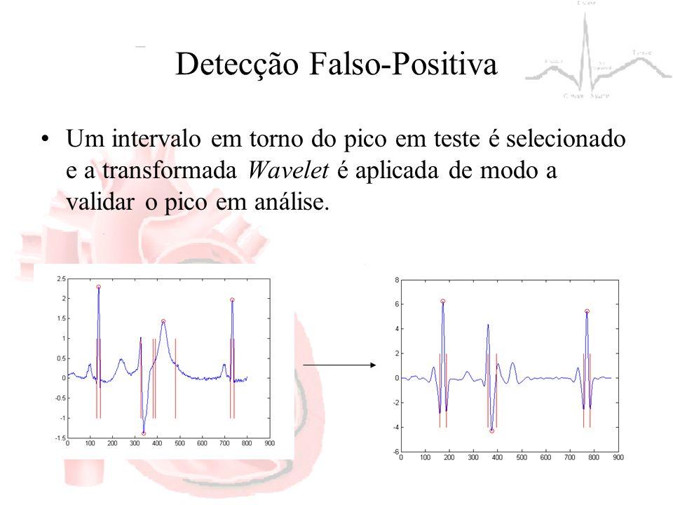 Detecção Falso-Positiva Um intervalo em torno do pico em teste é selecionado e a transformada Wavelet é aplicada de modo a validar o pico em análise.