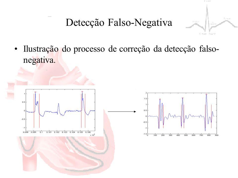 Detecção Falso-Negativa Ilustração do processo de correção da detecção falso- negativa.