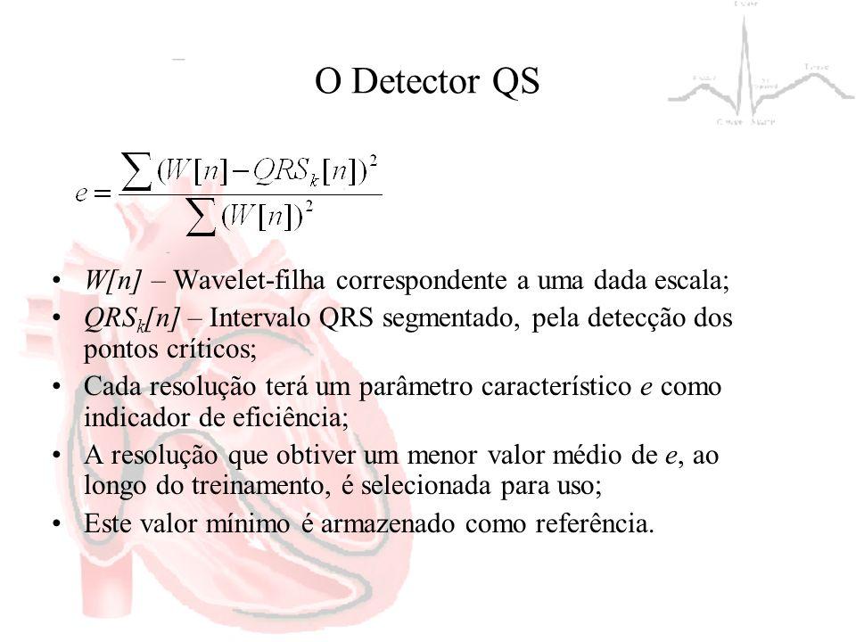 O Detector QS W[n] – Wavelet-filha correspondente a uma dada escala; QRS k [n] – Intervalo QRS segmentado, pela detecção dos pontos críticos; Cada res