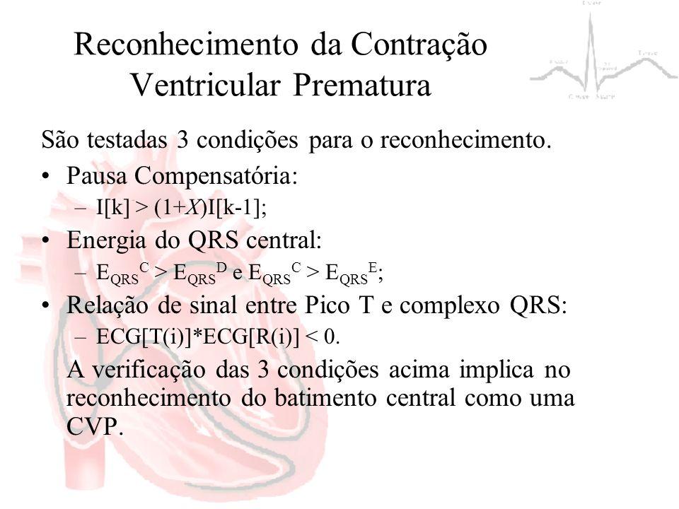Reconhecimento da Contração Ventricular Prematura São testadas 3 condições para o reconhecimento. Pausa Compensatória: –I[k] > (1+X)I[k-1]; Energia do