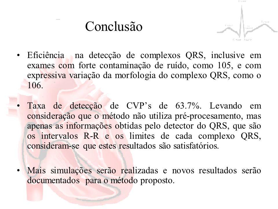 Conclusão Eficiência na detecção de complexos QRS, inclusive em exames com forte contaminação de ruído, como 105, e com expressiva variação da morfolo