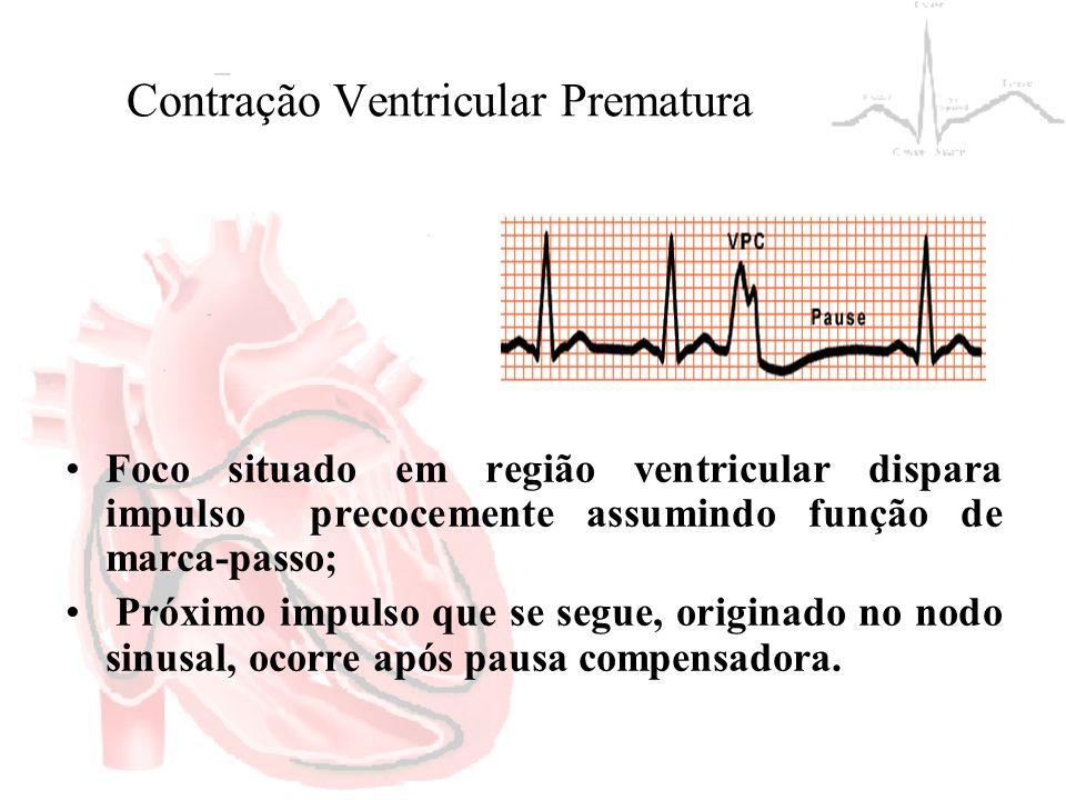 Contração Ventricular Prematura Foco situado em região ventricular dispara impulso precocemente assumindo função de marca-passo; Próximo impulso que s