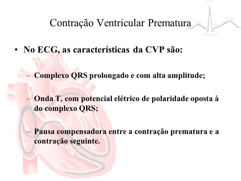 Contração Ventricular Prematura No ECG, as características da CVP são: –Complexo QRS prolongado e com alta amplitude; –Onda T, com potencial elétrico