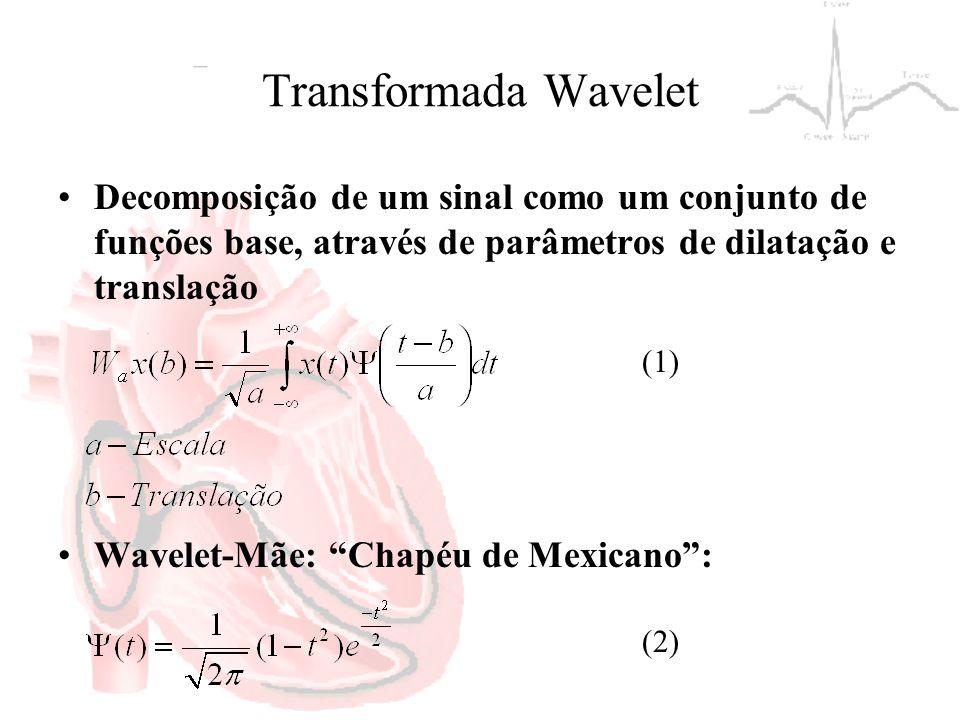 Transformada Wavelet Decomposição de um sinal como um conjunto de funções base, através de parâmetros de dilatação e translação Wavelet-Mãe: Chapéu de