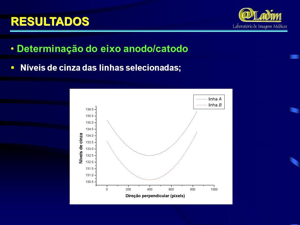 Níveis de cinza das linhas selecionadas; RESULTADOS Determinação do eixo anodo/catodo