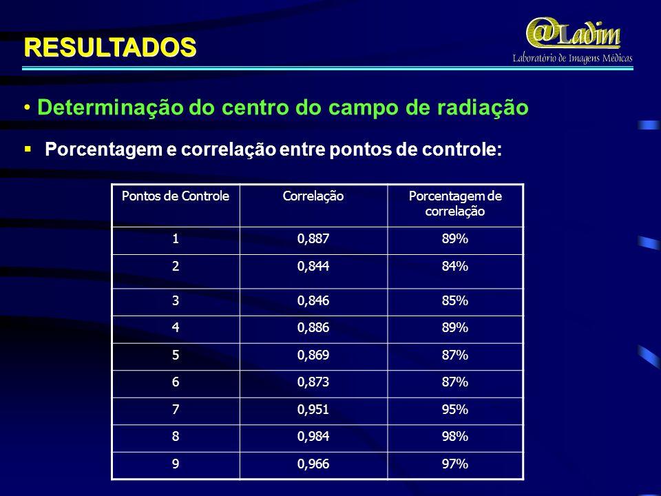 Pontos de ControleCorrelaçãoPorcentagem de correlação 10,88789% 20,84484% 30,84685% 40,88689% 50,86987% 60,87387% 70,95195% 80,98498% 90,96697% Porcentagem e correlação entre pontos de controle: RESULTADOS Determinação do centro do campo de radiação