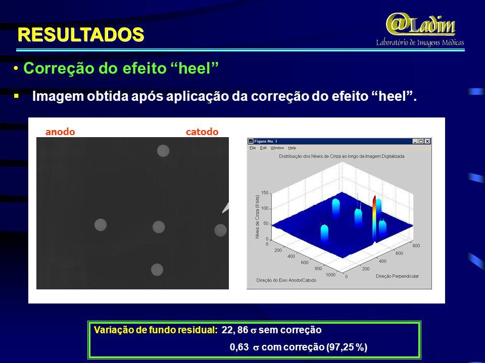 Imagem obtida após aplicação da correção do efeito heel. Imagem obtida após aplicação da correção do efeito heel. anodo catodo RESULTADOS Variação de