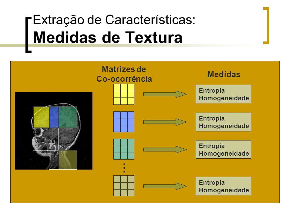 Matrizes de Co-ocorrência Medidas Extração de Características: Medidas de Textura … Entropia Homogeneidade Entropia Homogeneidade Entropia Homogeneida