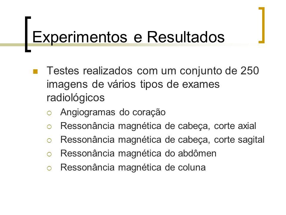 Experimentos e Resultados Testes realizados com um conjunto de 250 imagens de vários tipos de exames radiológicos Angiogramas do coração Ressonância m