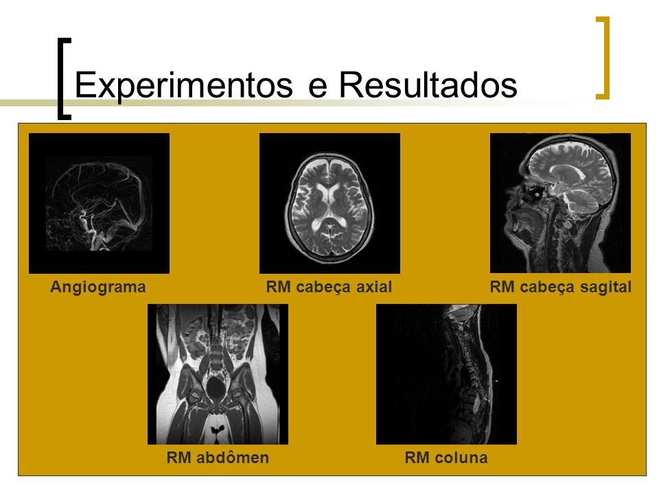 Experimentos e Resultados AngiogramaRM cabeça axialRM cabeça sagital RM abdômenRM coluna