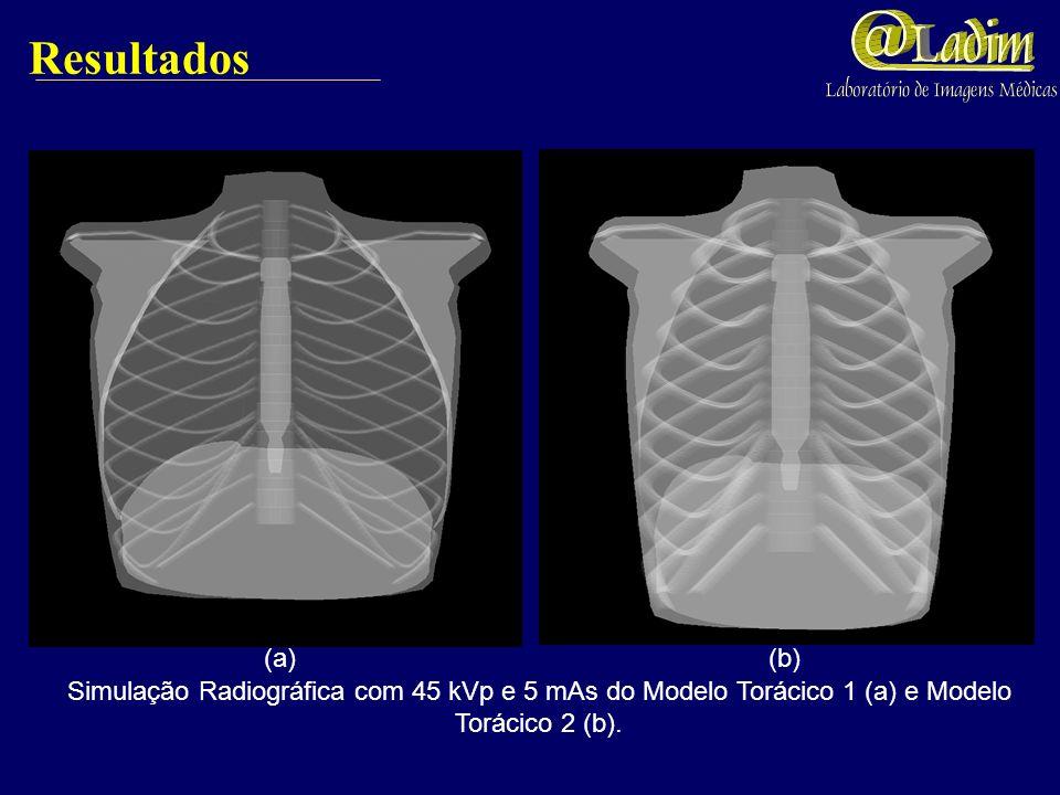 Parâmetros das Imagens Radiográficas Simuladas Utilizamos espectros apresentados por BOONE & SEIBERT (1997). Coeficientes de atenuação de massa calcul
