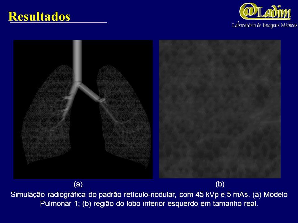 Resultados Simulação Radiográfica com 45 kVp e 5 mAs do Modelo Torácico 1 (a) e Modelo Torácico 2 (b). (a) (b)