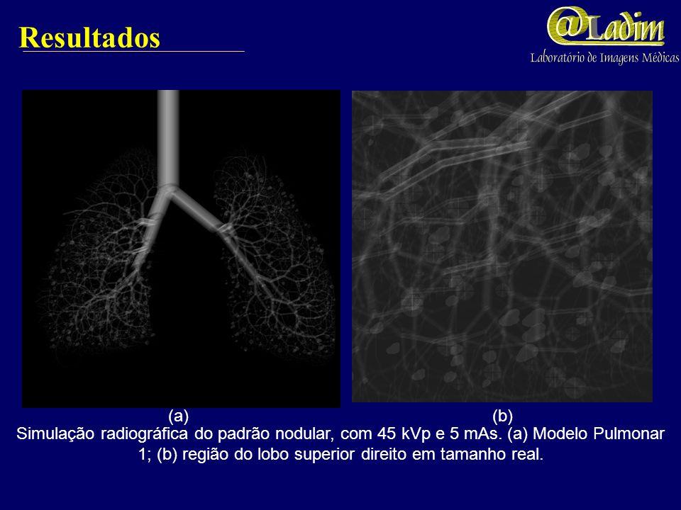 Resultados (a) (b) Simulação radiográfica do padrão retículo-nodular, com 45 kVp e 5 mAs. (a) Modelo Pulmonar 1; (b) região do lobo inferior esquerdo