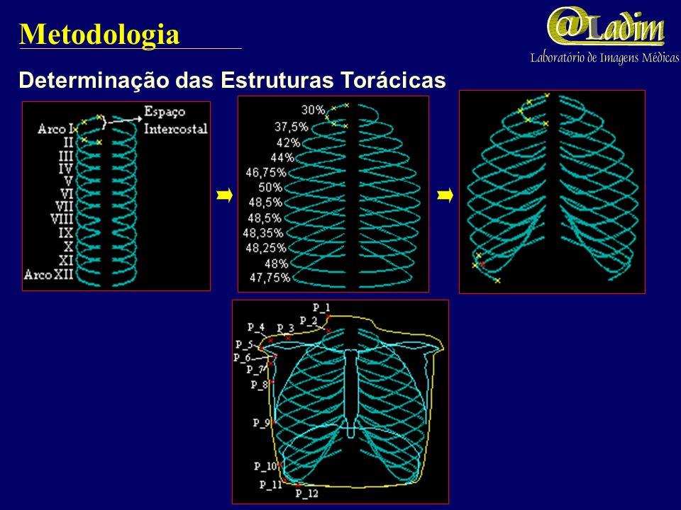 Metodologia Determinação das Estruturas Torácicas